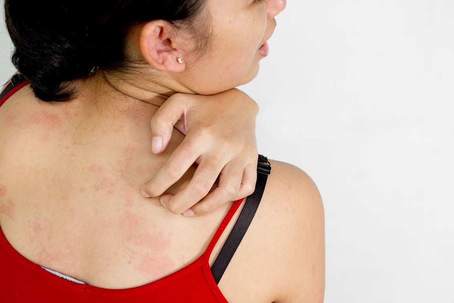 bigstock-Woman-Scratch-Her-Back-With-It-12556877