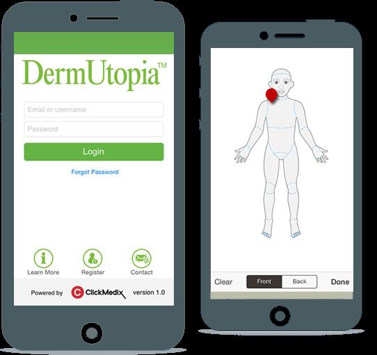 DermUtopia app provides access to dermatologists online