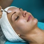 Chemical Peels in Vienna Virginia